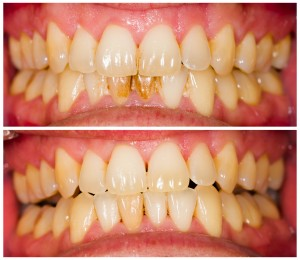 Removed plaque on incisors from patient's lower denture.